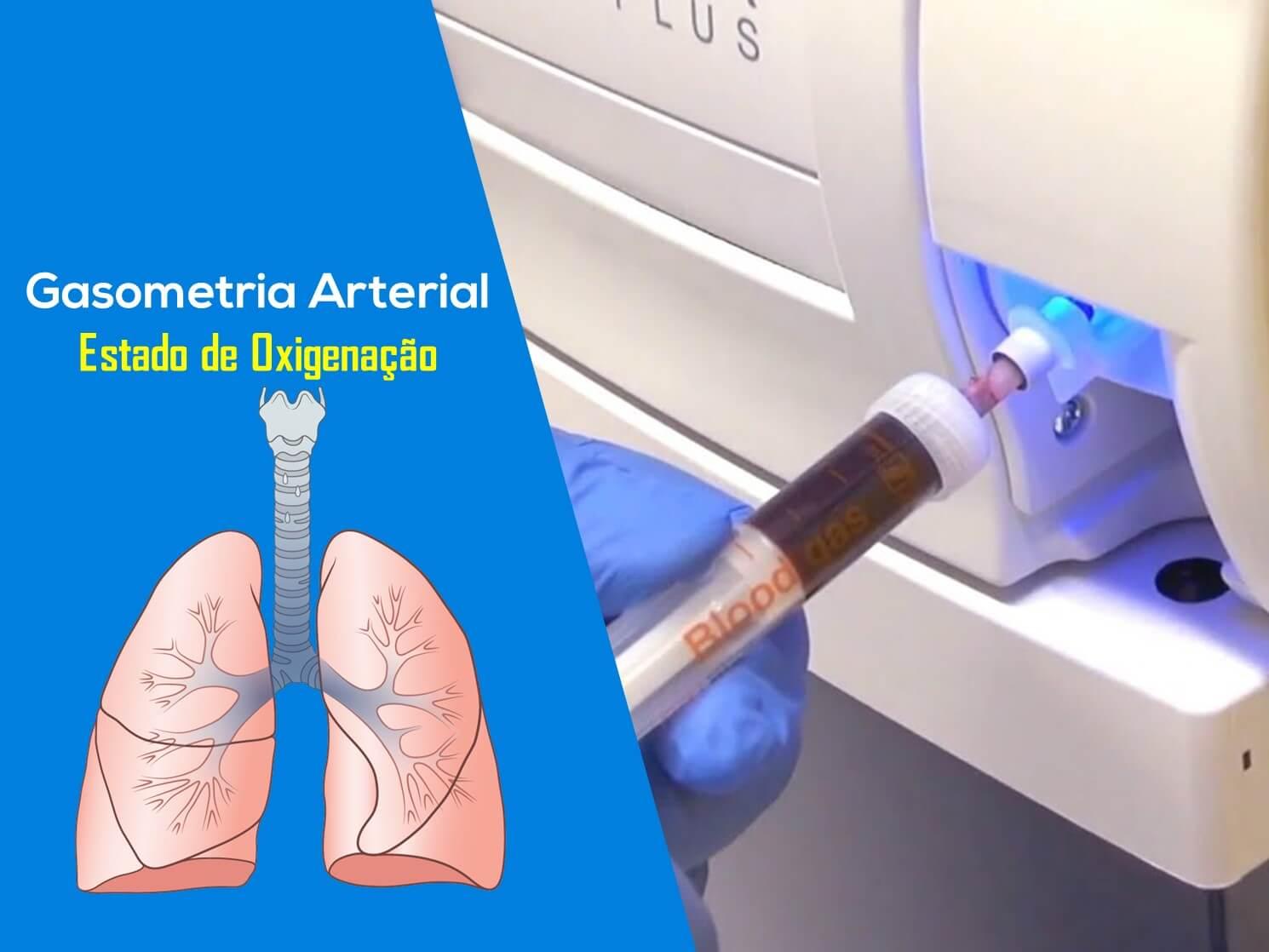 Interpretação da Gasometria Arterial. Estado de Oxigenação.